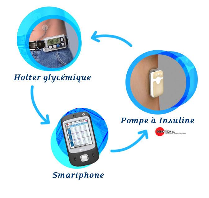 CEA-Leti, Diabeloop develop artificial pancreas to treat
