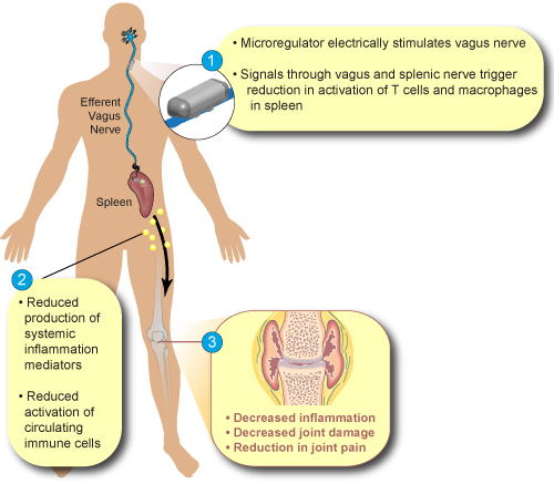 overview of vagus nerve stimulation The vagus nerve is one of 12 cranial nerves that pass information to and from the brain the vagus nerve is the longest of the cranial nerves, with connections to the brain and many of the organs of the body.
