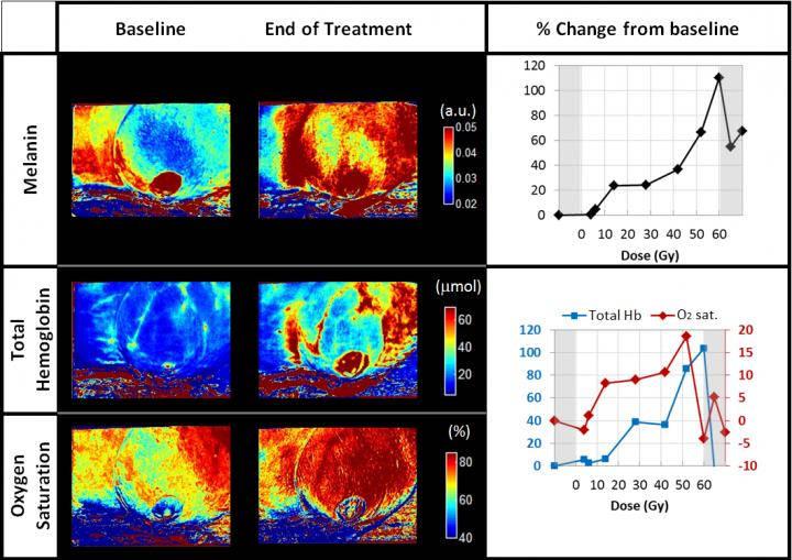 LED scanner reveals radiotherapy damage