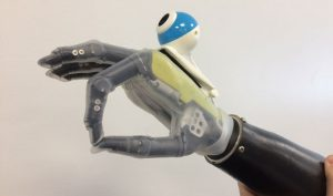 U of Newcastle bionic hand with vision