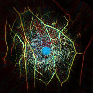 Caltech-laser-mammography
