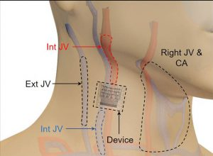 UCSD-ultrasound-patch